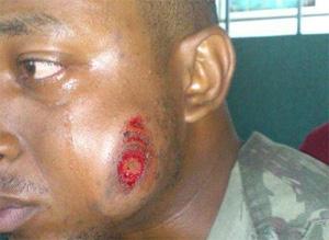 11706_homem atingido por bala de borracha